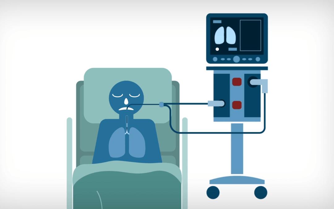 Mekanik Ventilatörlerdeki Bağlantısızlık (Disconnection) Alarmı Nedir? Nasıl Çözülür?