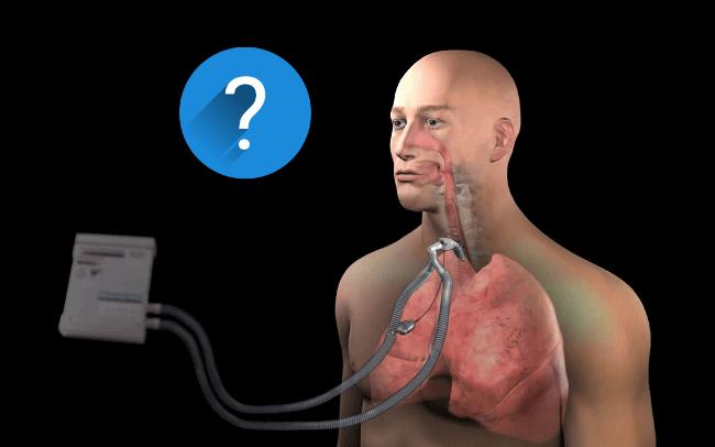 SGK Ev Tipi Mekanik Ventilatör Cihazına Kaç Lira Ödemeli?