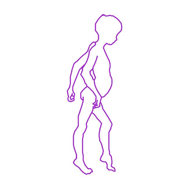 DMD (Duchenne Musküler Distrofi) Nedir? Nasıl Tedavi Edilir?