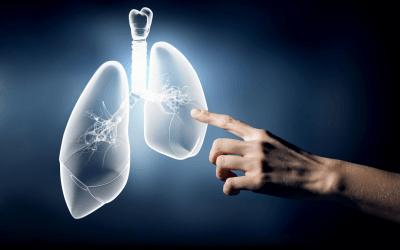 17 Kasım Dünya Akciğer Kanseri Günü