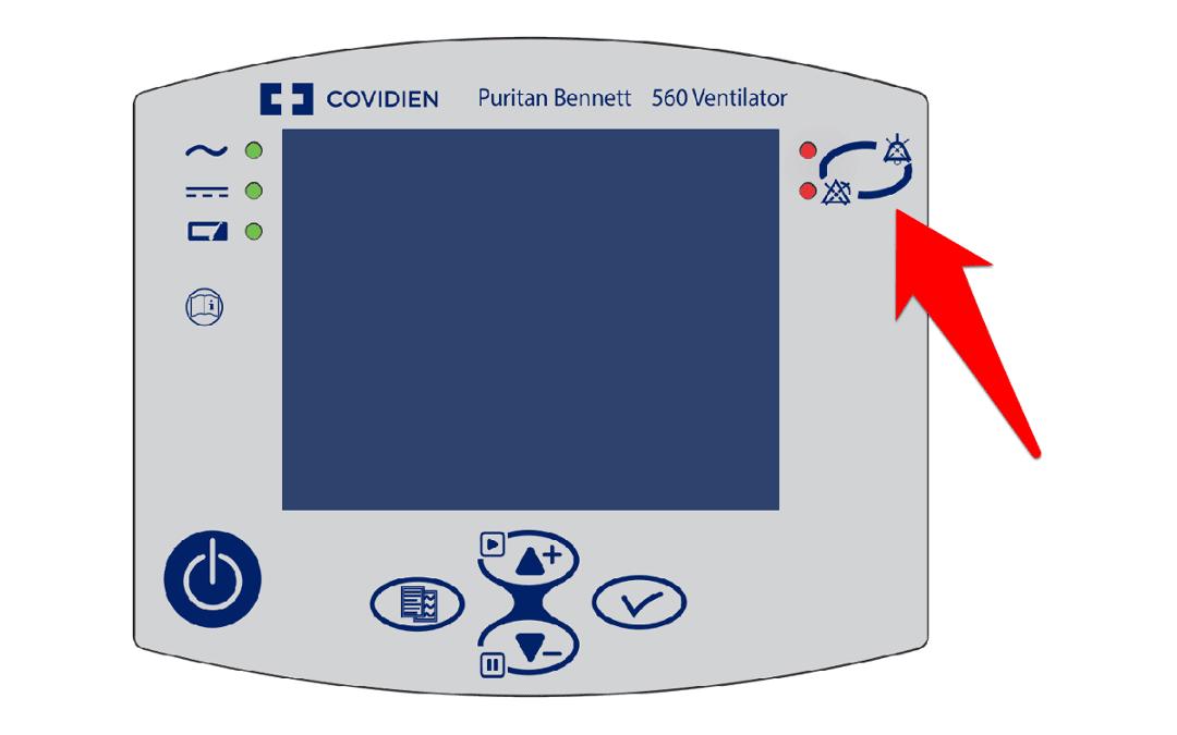 Puritan Bennett 560 Mekanik Ventilatör Cihazındaki E Hassasiyet Alarmı Nedir?