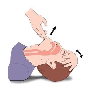 CPR (Temel Yaşam Desteği) Nedir? Nasıl Uygulanır?